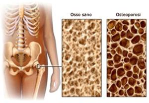osteoporosi_metodo_tamburo