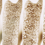 """Osteoporosi, definita la """"ladra silenziosa"""". Una malattia che erode le ossa lentamente"""