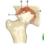 La coxartrosi, un processo degenerativo che colpisce l'articolazione dell'anca