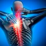 La Scoliosi: cause, cure e terapie proposte dal Metodo Tamburo